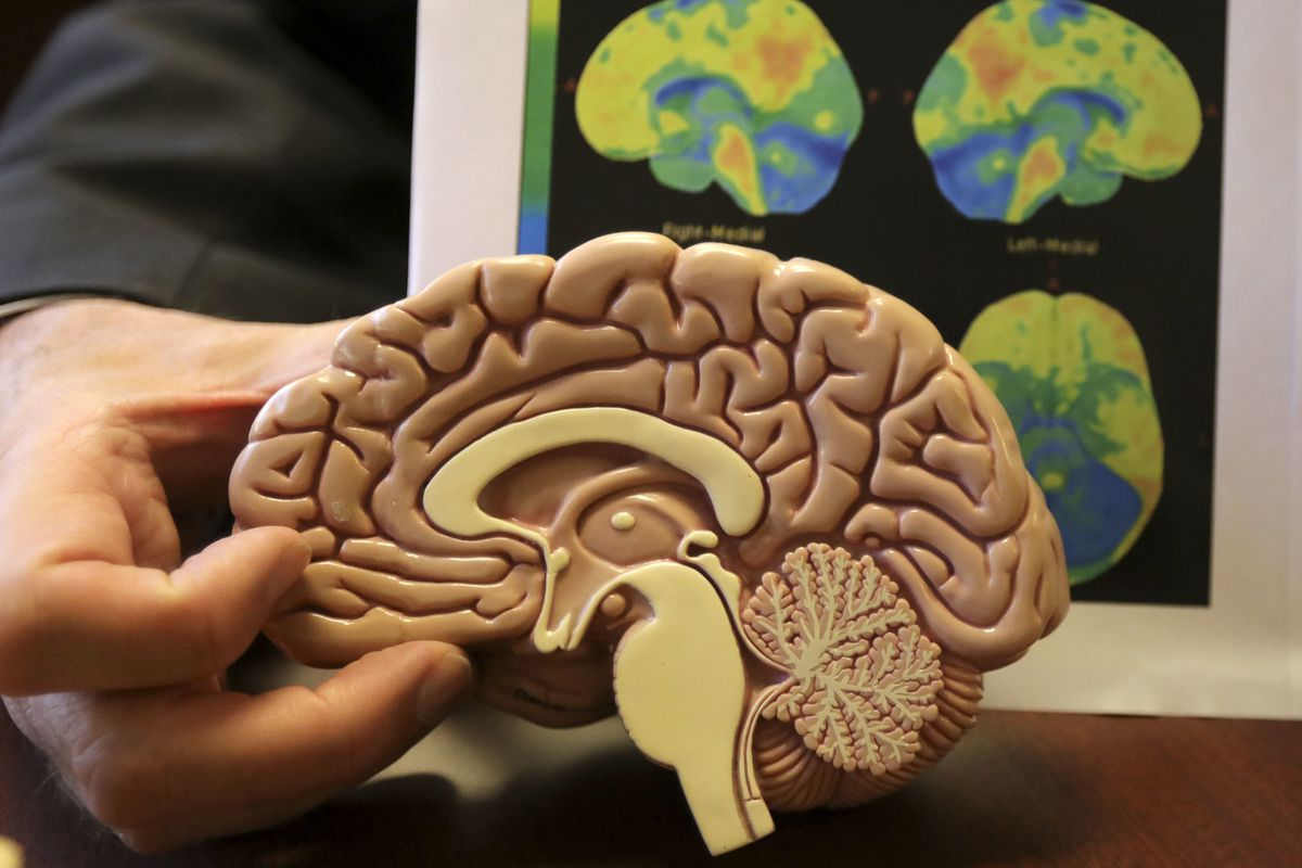 FILE - Dr. Norman L. Foster, M.D., Center for Alzheimer's Care, Imaging and Research director, shows what parts of the brain correspond to an amyloid PET at the University of Utah's Center for Alzheimer's Care, Imaging and Research in Salt Lake City on Tu