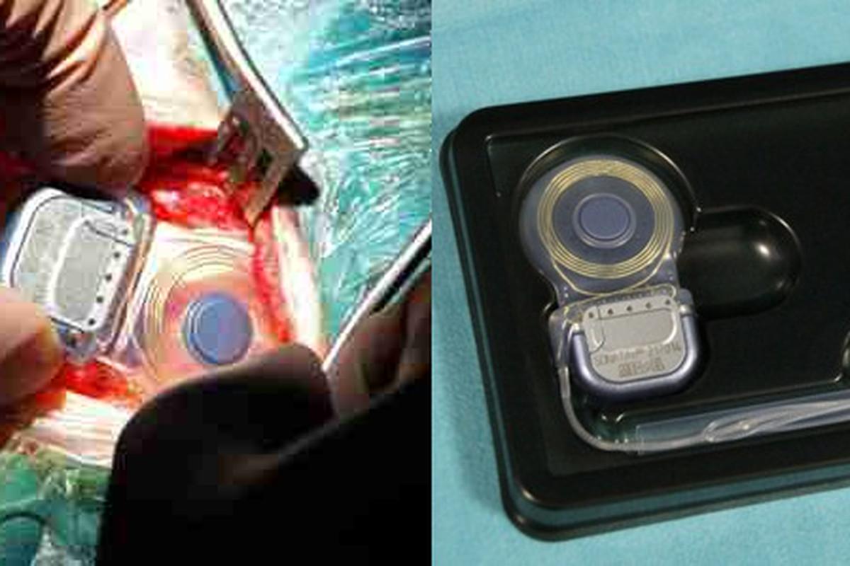 Vestibular Implant