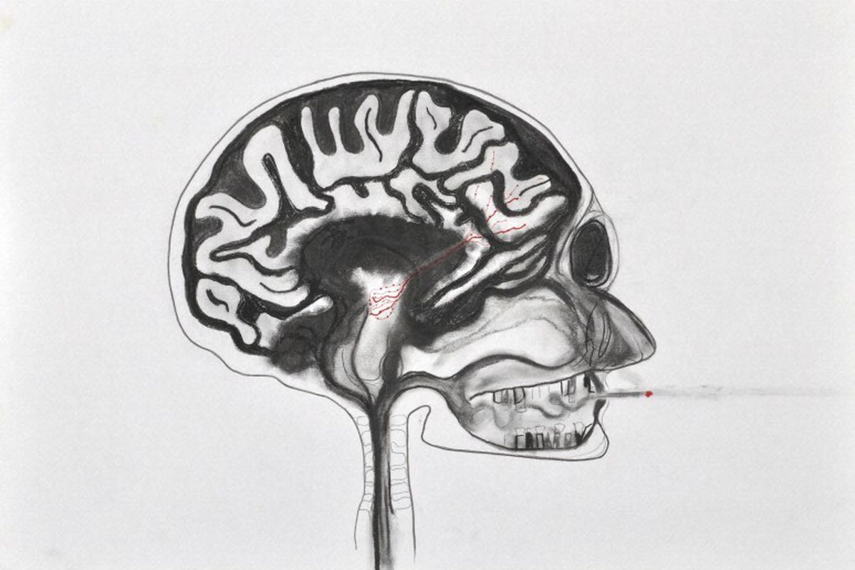 Scientists: don\'t zap your brain with a DIY brain stimulator you ...
