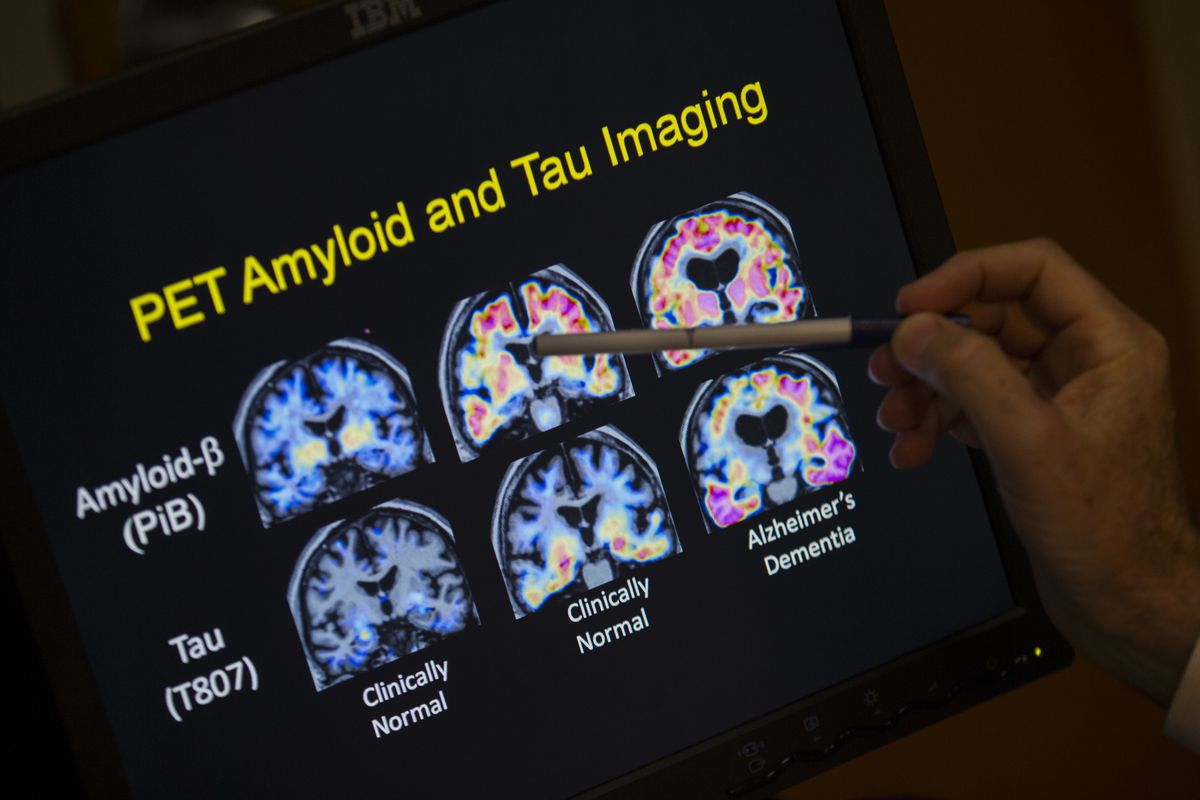 FILE - In this May 19, 2015, file photo, a doctor points to PET scan results that are part of a study on Alzheimer's disease at a hospital in Washington. Scientists know that long before the memory problems of Alzheimer's become obvious, people experience