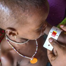 A young girl is measured with a mid-upper arm circumference armband to determine her nutrition status at a site for treaing acute malnutrition in the Muna-Garage camp, Maiduguri, Borno State, Nigeria on June 28, 2016. The red section of the armband indicates that she is at risk for severe acute malnutrition.