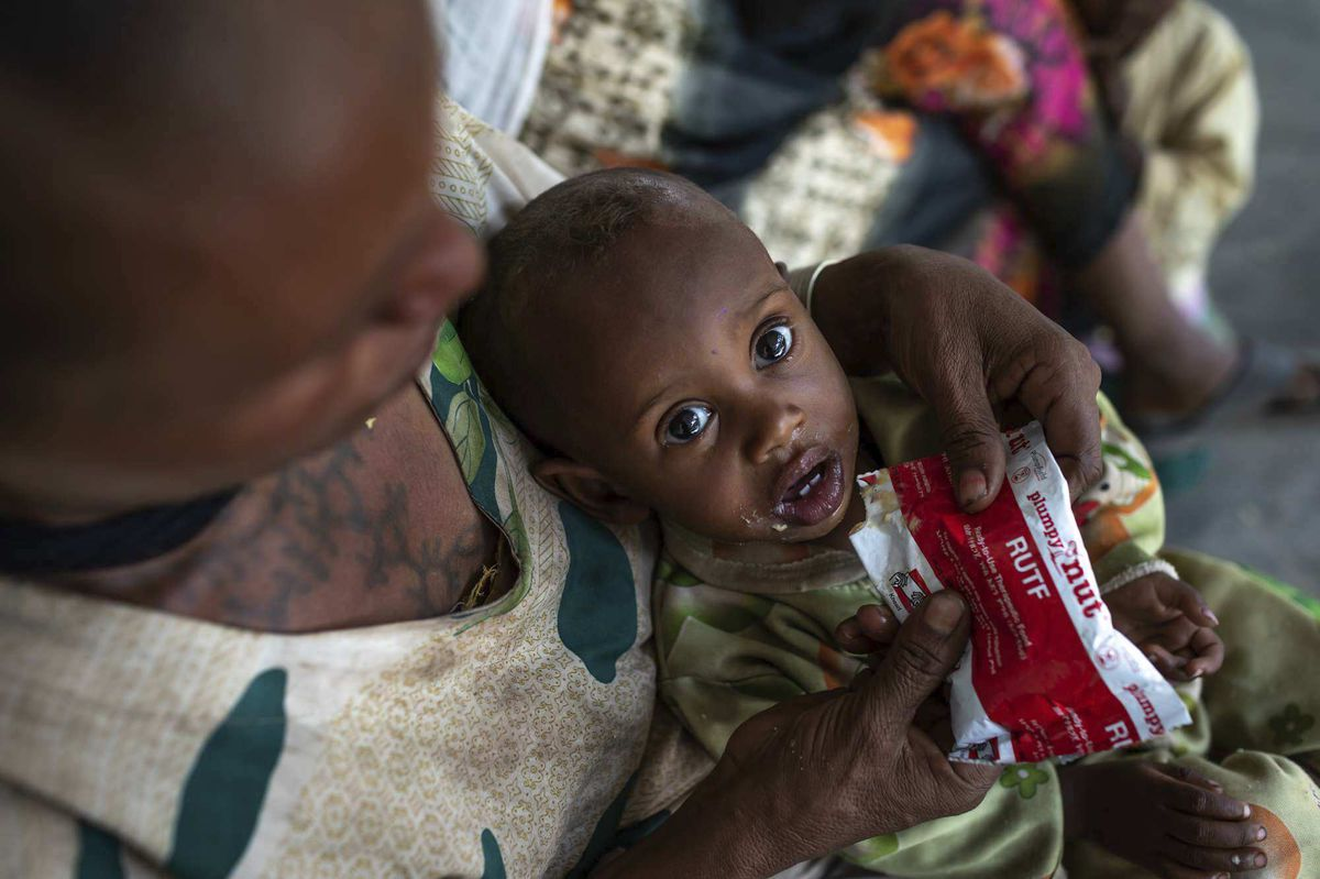 Letmedhin Eyasu holds her 1-year-old son Zewila Gebru, who is suffering from malnutrition, at a health center in Agbe, Ethiopia.