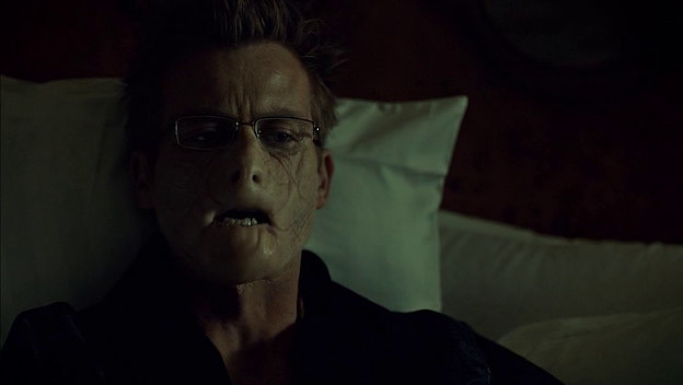 Mason's half face on Hannibal