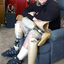 Hope Bevilhymer, at her home in West Jordan, has started an organization that collects used prosthetics and delivers them to Third World countries.