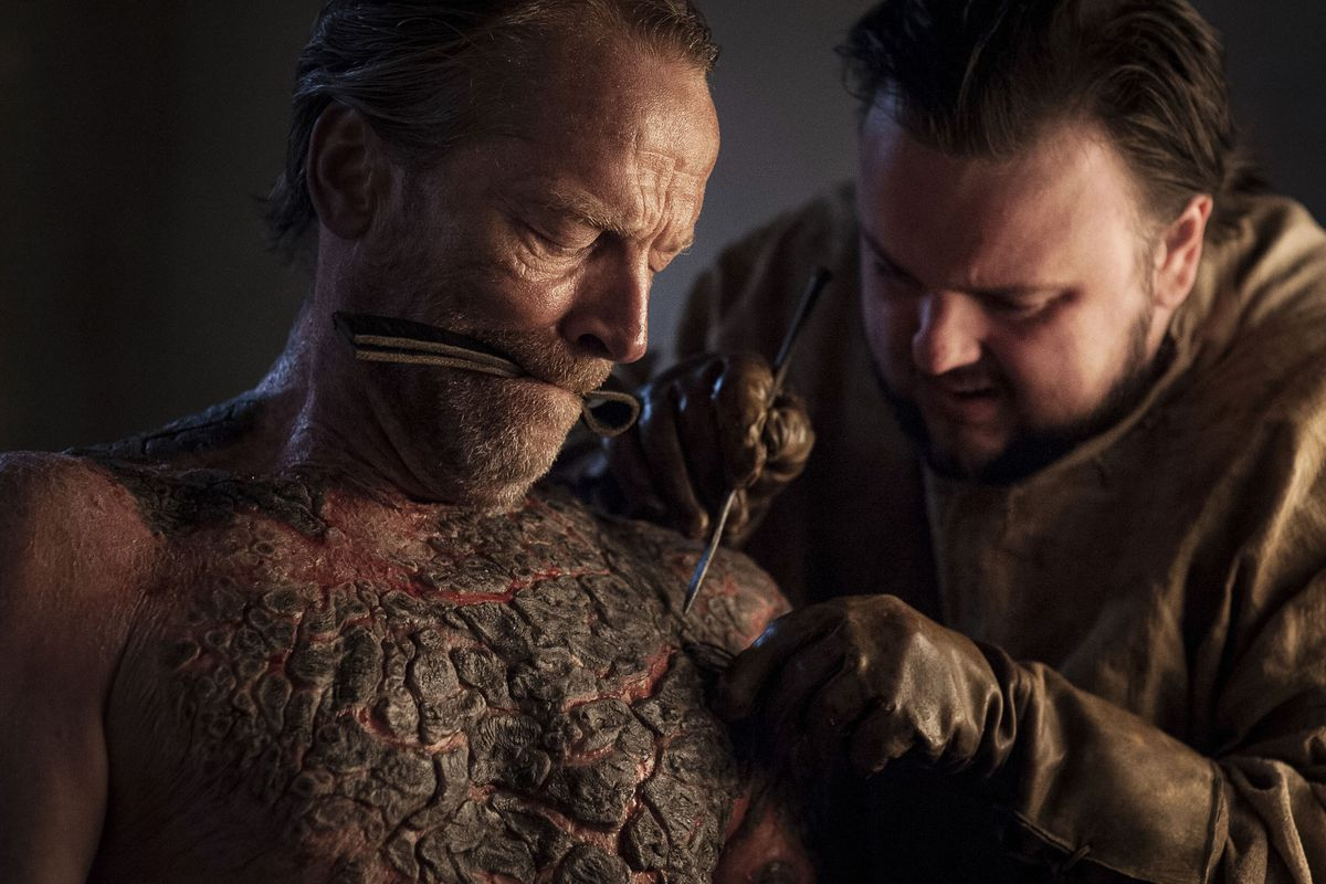 Our in house dermatologist on the cringeworthy game of thrones our in house dermatologist on the cringeworthy game of thrones greyscale surgery scene solutioingenieria Image collections