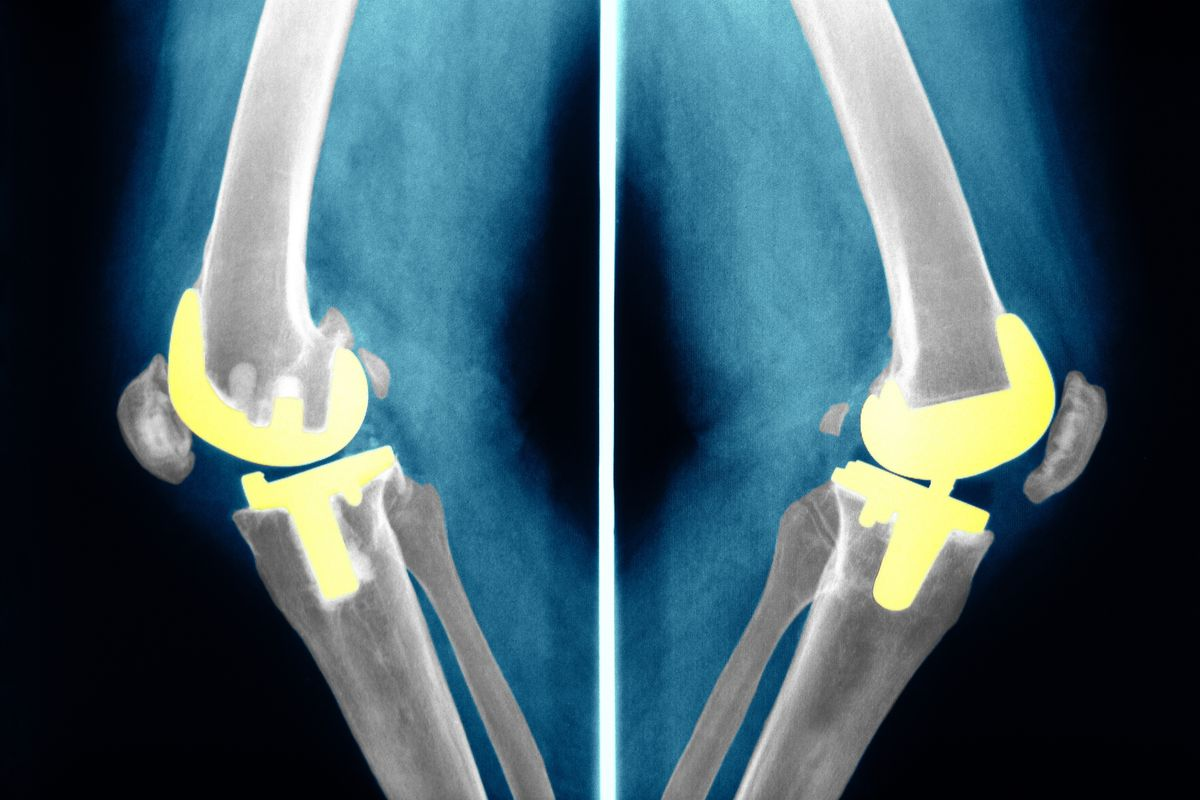 These are not the bee's knees, but they are human knees with fake knee prosthetics.