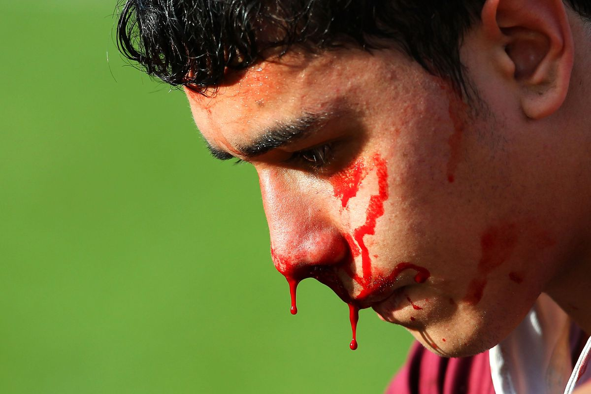 """An old collegiate saying: """"Better a bloody nose than syphilis."""""""