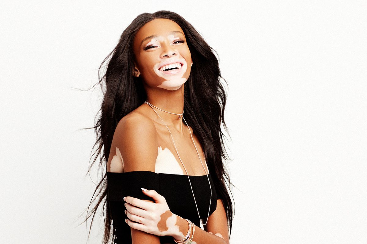 why model winnie harlow hates trying on clothes racked