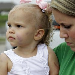 Family relative Jennifer Steed, right, holds 19-month-old Abigail Jones, left, Wednesday, April 4, 2012, in Forney, Texas. Abigail survived a tornado that struck her babysitters home on Tuesday, completely destroying the structure.