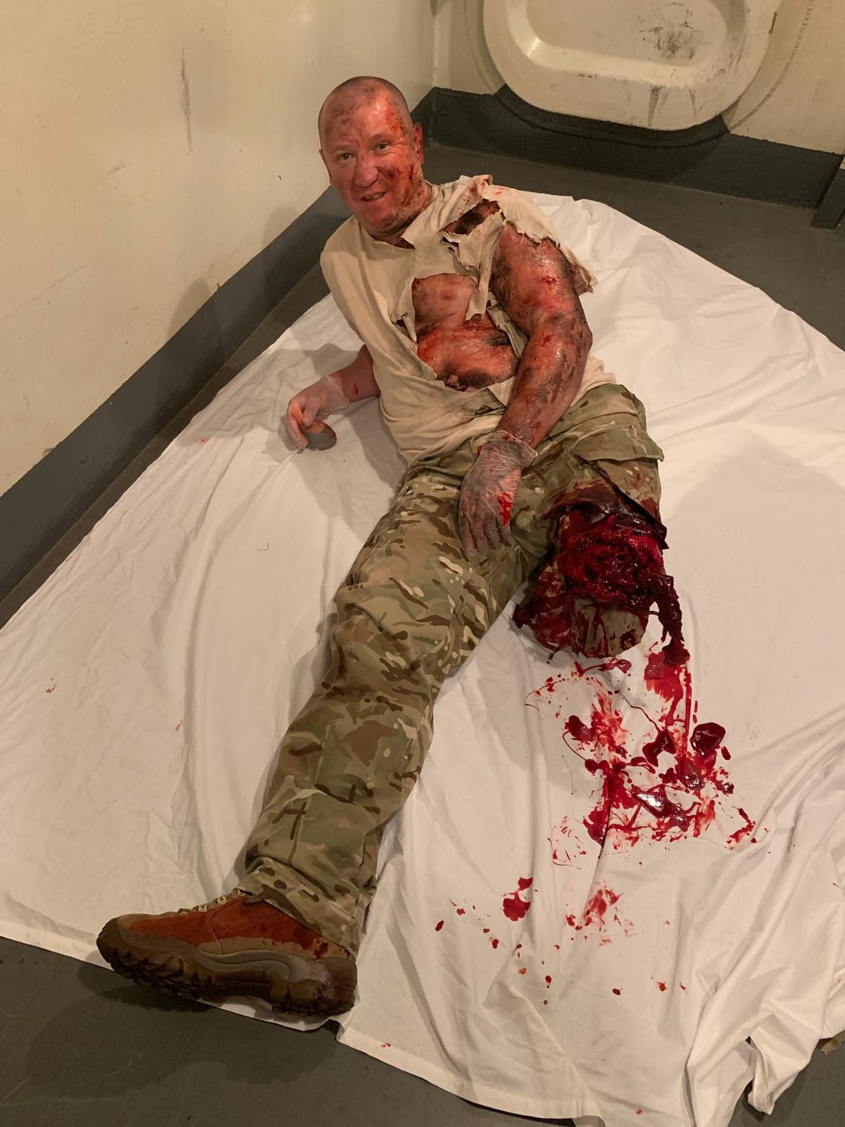 A man who appears to have violently had his leg blown off, but is actually just in makeup.