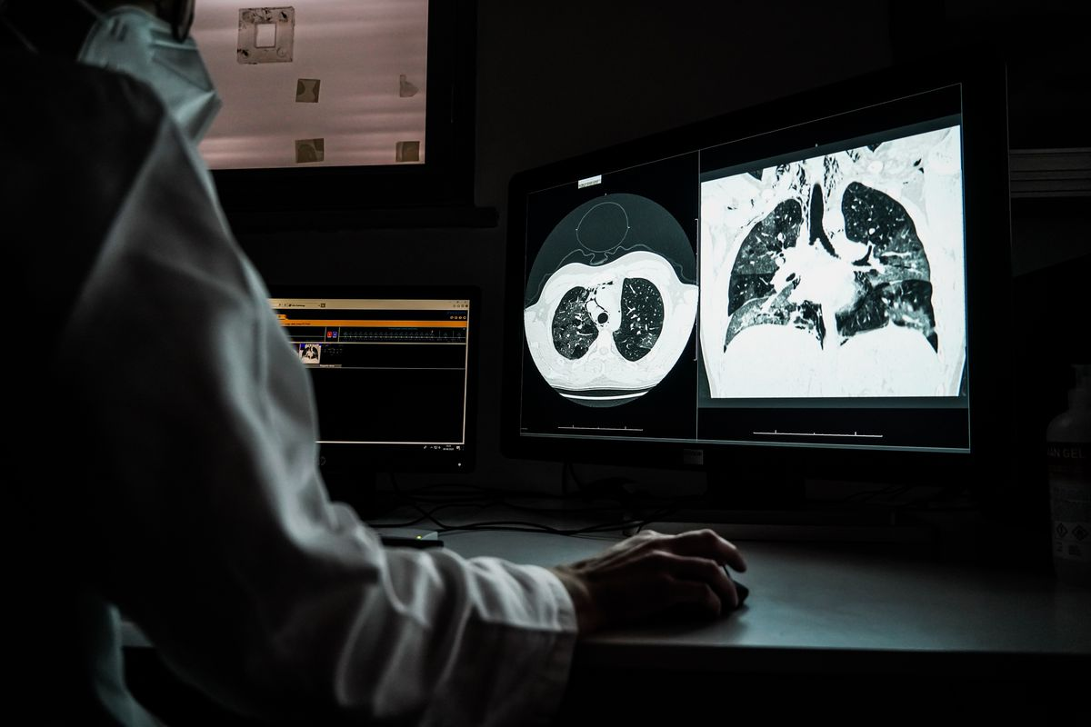 Radiologists observe CT scans of covid-19 hospital in Cremona