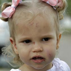 Abigail Jones, 19-months-old, watches as her mother Misty, not shown, responds to a reporters' question Wednesday, April 4, 2012, in Forney, Texas. Abigail, who was found in a pile of rubble, survived a tornado that completely destroyed the home of her babysitter with just minor scrapes and bruises.  (AP Photo/Tony Gutierrez)