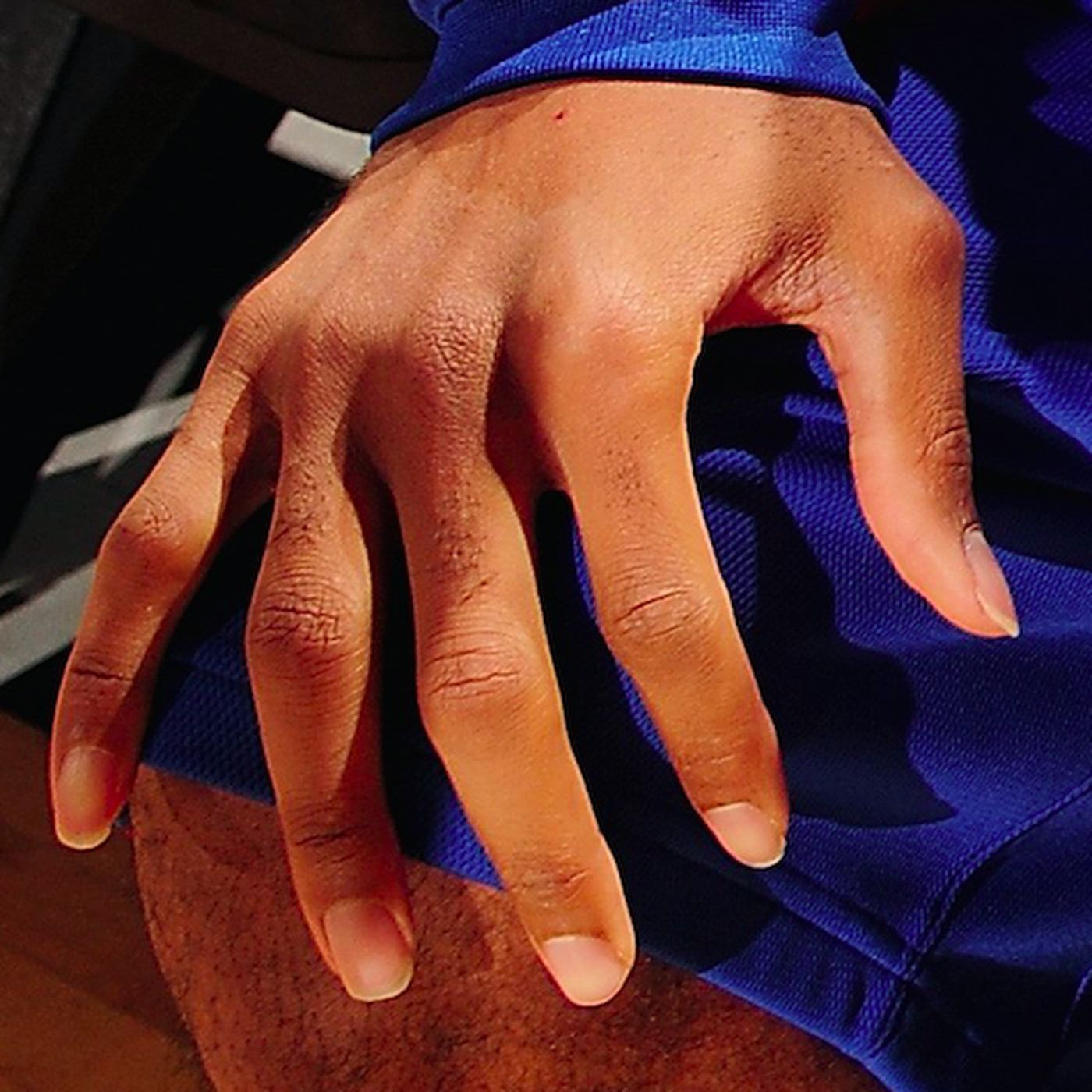 Dear basketball players, please cut your fingernails