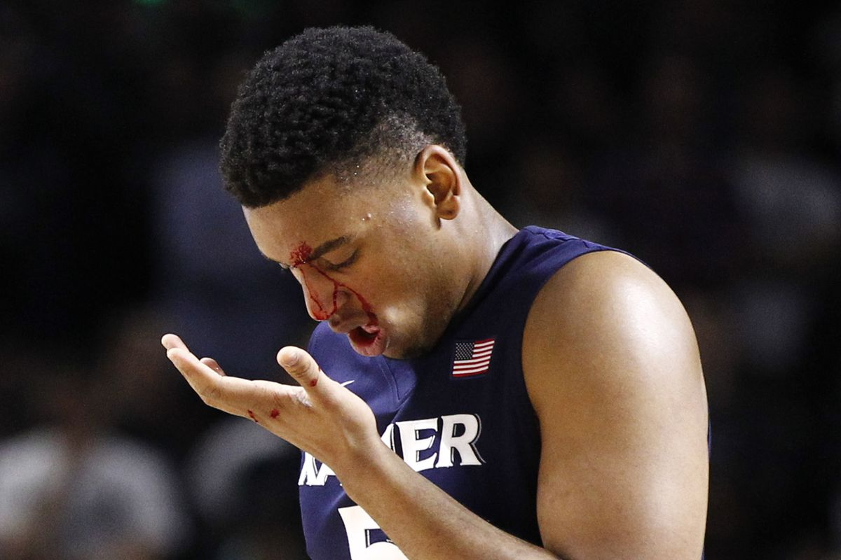 This is what you get for committing fouls with your face. -Big East refs
