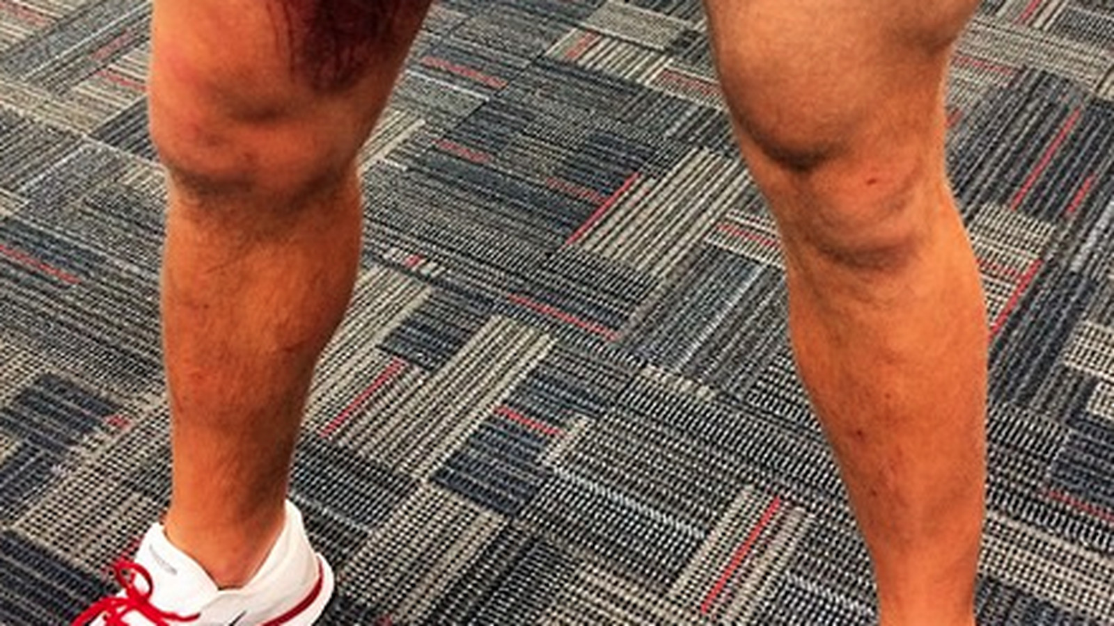 J.J. Watt posted the grossest picture of a leg bruise you