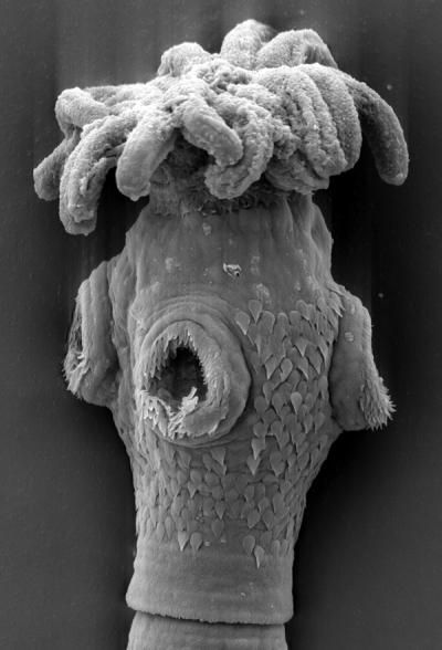 This is the part of a tapeworm that latches onto its host's intestine. This particular tapeworm was discovered in a Giant Shovelnose Ray from Australia.