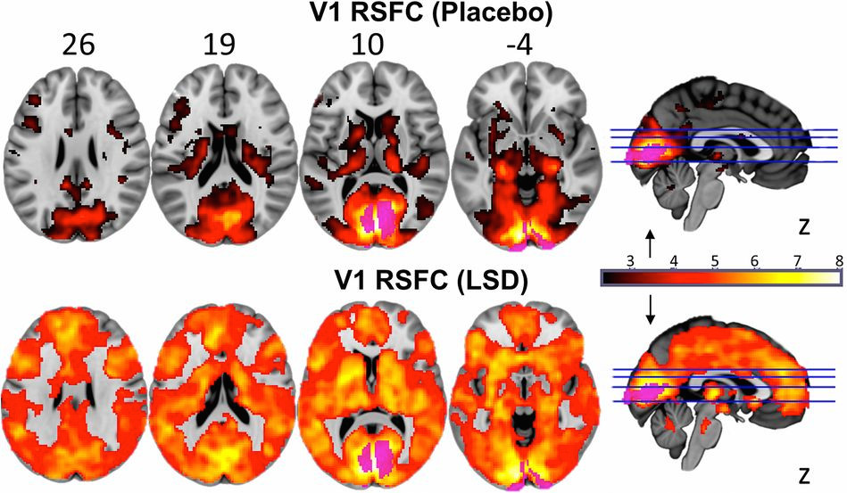 Brain images of the effects of LSD.