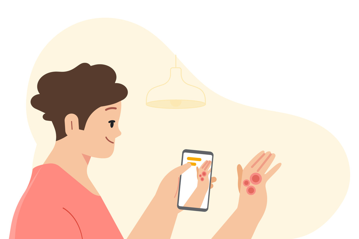 Cartoon image of a person using a smartphone to photograph a rash on their hand.