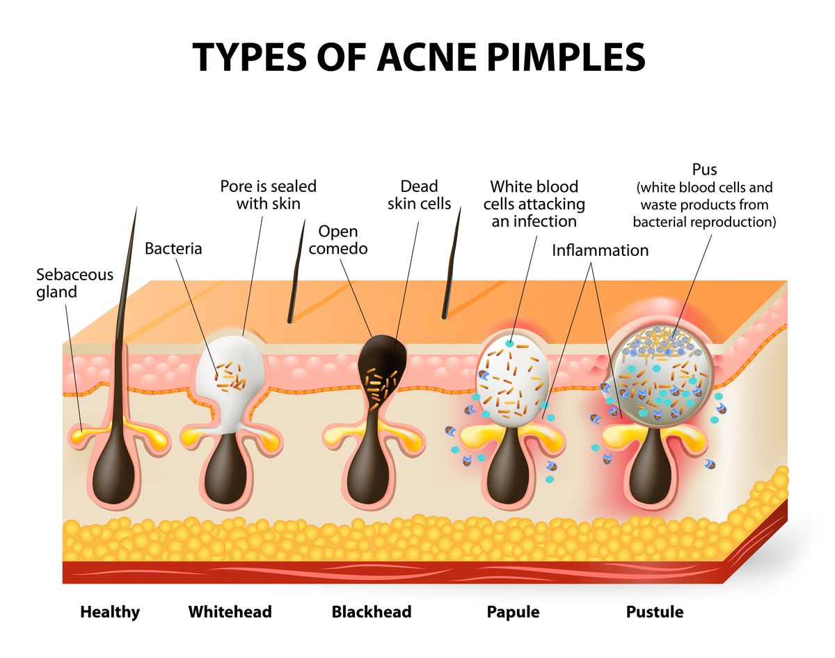 Why you shouldn't pop pimples — and 9 other things to know about