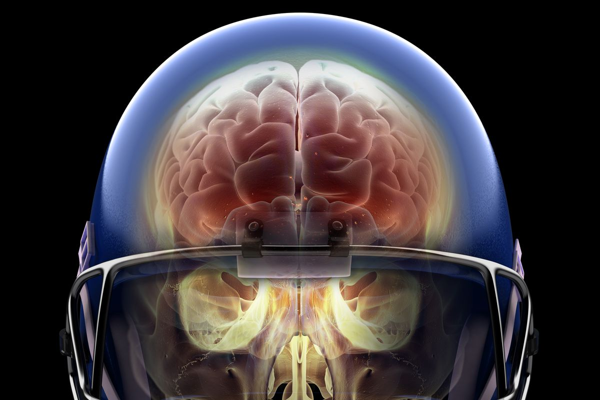 Concussions Are Brain Injuries Sit Your >> Super Bowl 2019 Football Concussions The Link Between Head
