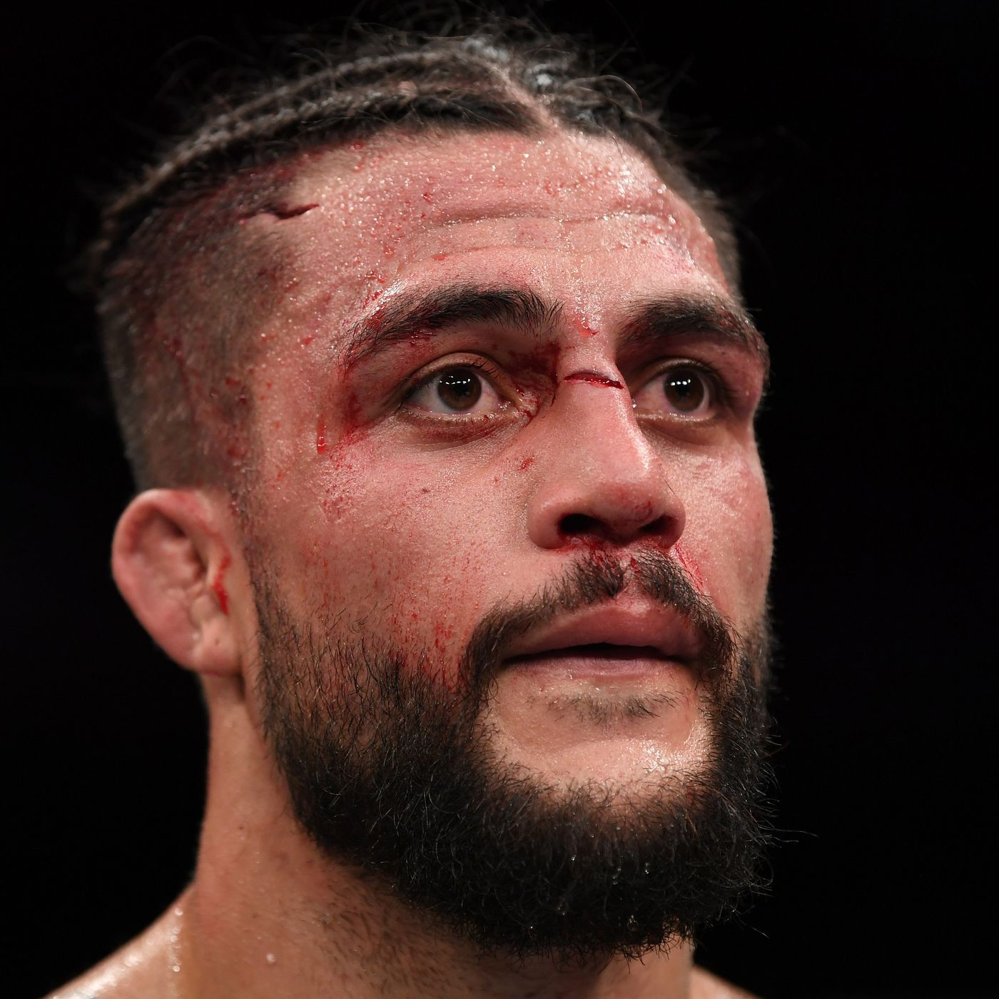 Injury Forces Tyson Pedro Out Of Ufc Auckland Felder Vs