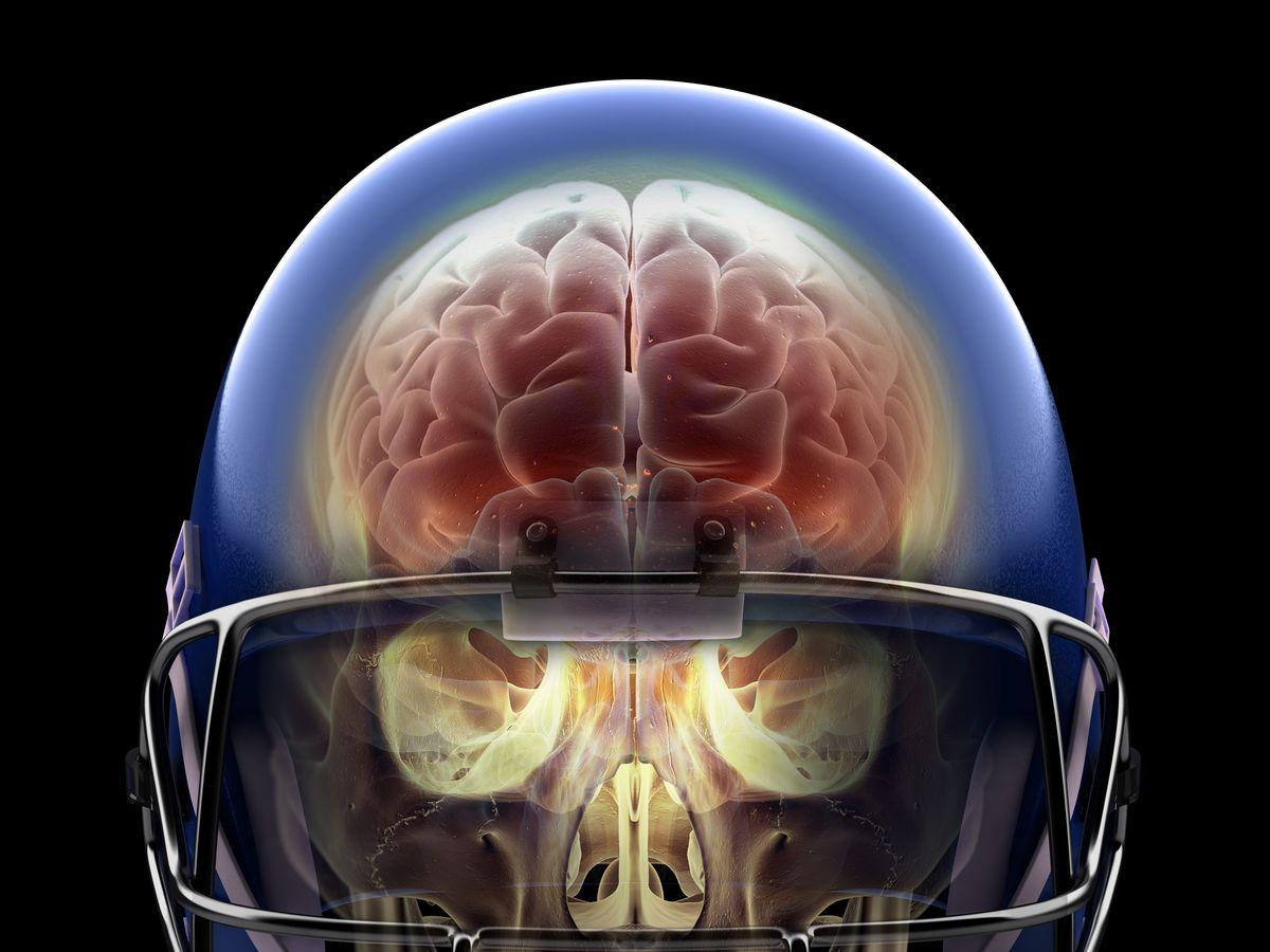 super bowl 2019 football concussions the link between head