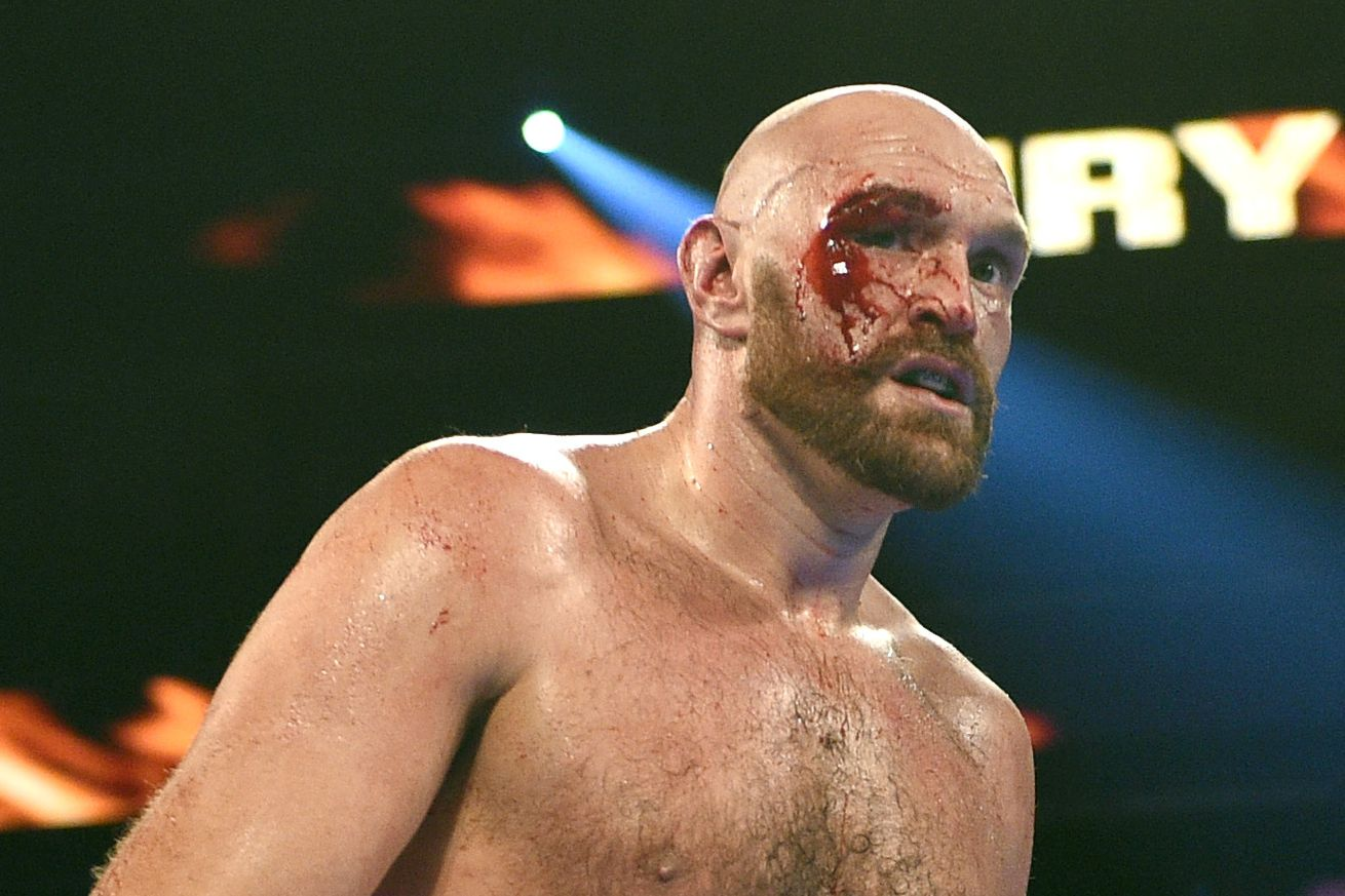 Pros react to Fury's bloody decision win over Wallin