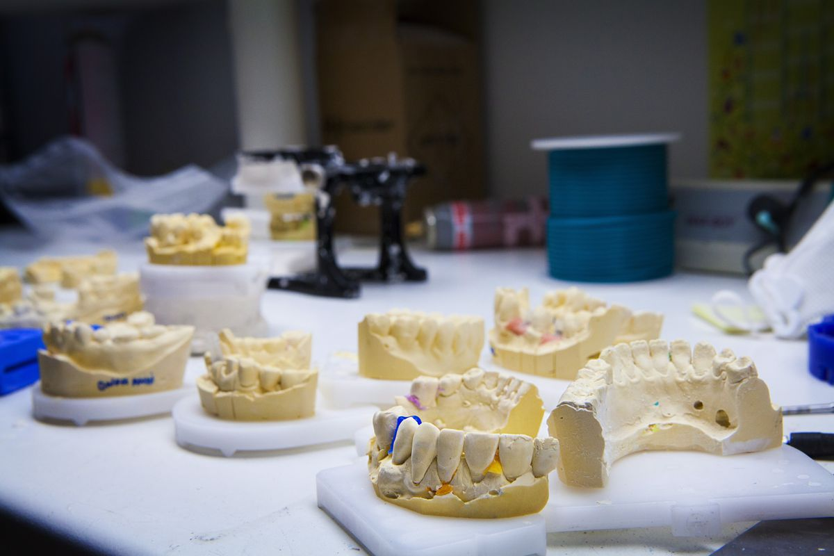 The medical device tax could sure take a bite out of dental prosthetic manufacturer profits.