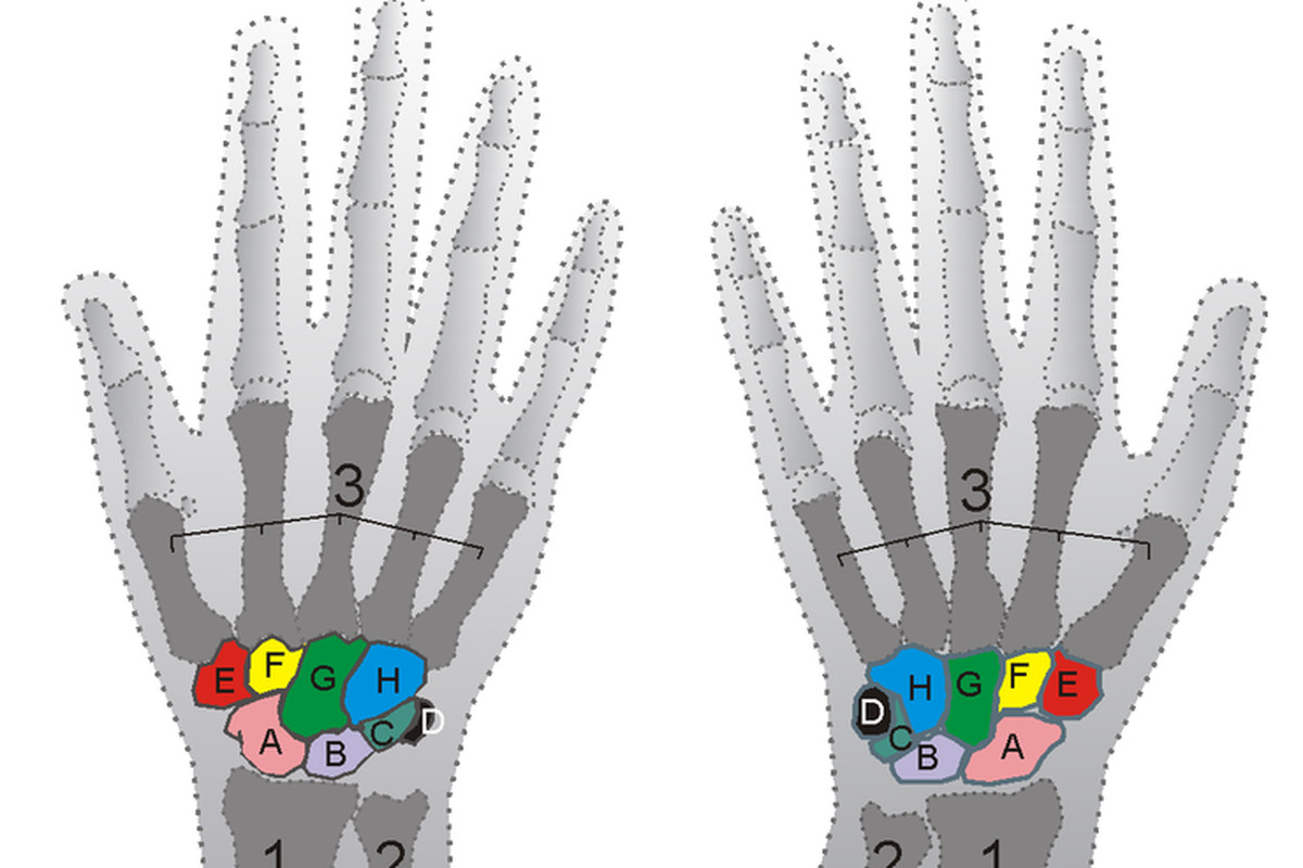 """The hamate bone is labeled """"H"""" in Blue.  Don't look at it too long and get any ideas, I already got dibs on that."""