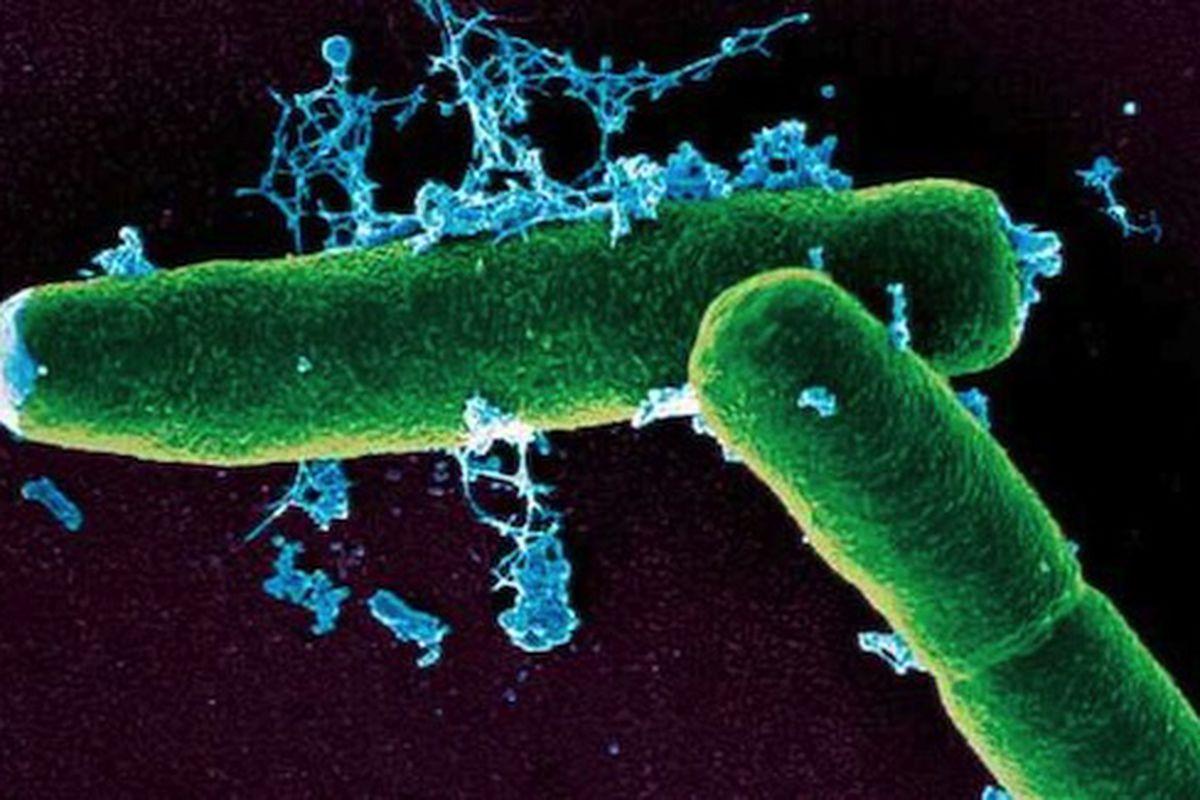 Anthrax bacteria microscope view--Kenyon College MicrobeWiki