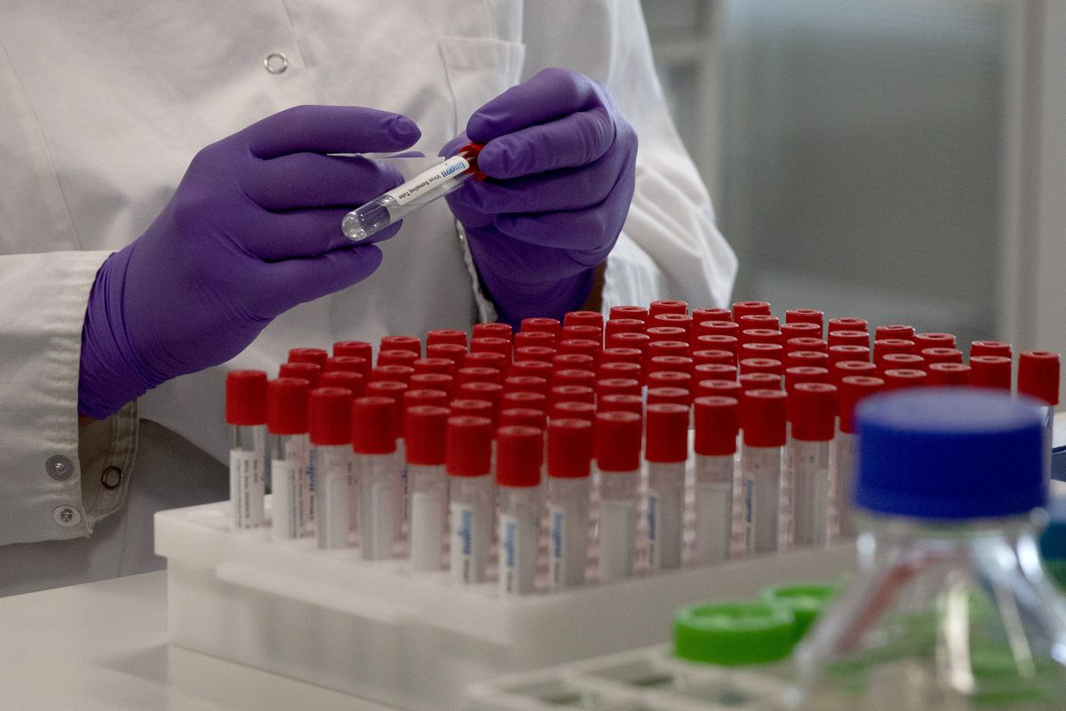 A lab technician puts a label on a test tube during research on coronavirus, COVID-19, at Johnson & Johnson subsidiary Janssen Pharmaceutical in Beerse, Belgium, on Wednesday, June 17, 2020.