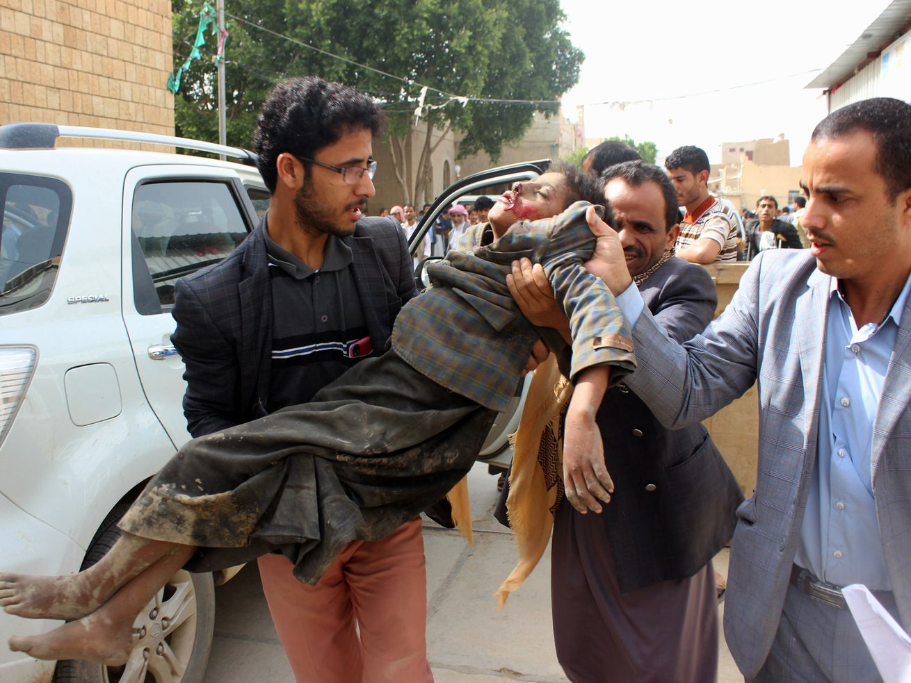 A Yemeni child is transported to a hospital after being wounded in a reported airstrike on the Iran-backed Houthi rebels' stronghold province of Sa'ada on August 9, 2018.
