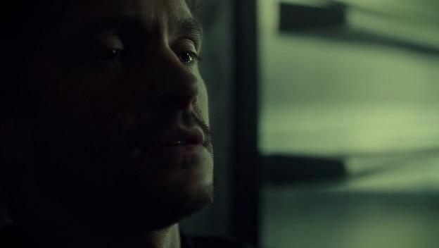 Will has a half face on Hannibal