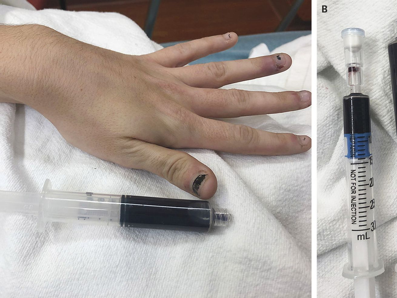 Rhode Island woman's blood turns blue. Here's how it happened, according to a researcher