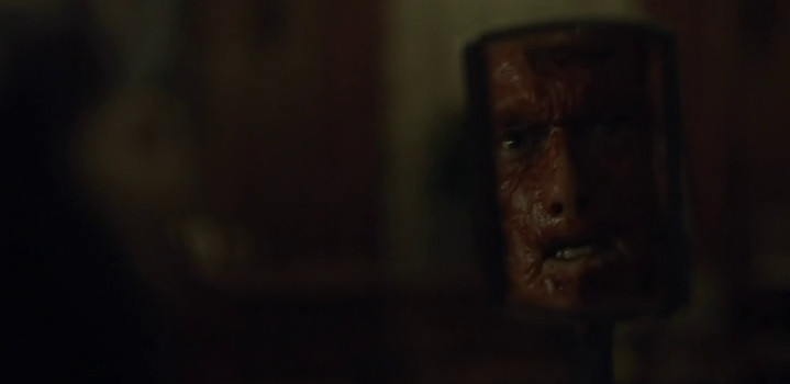 Mason Verger loses his face on Hannibal.