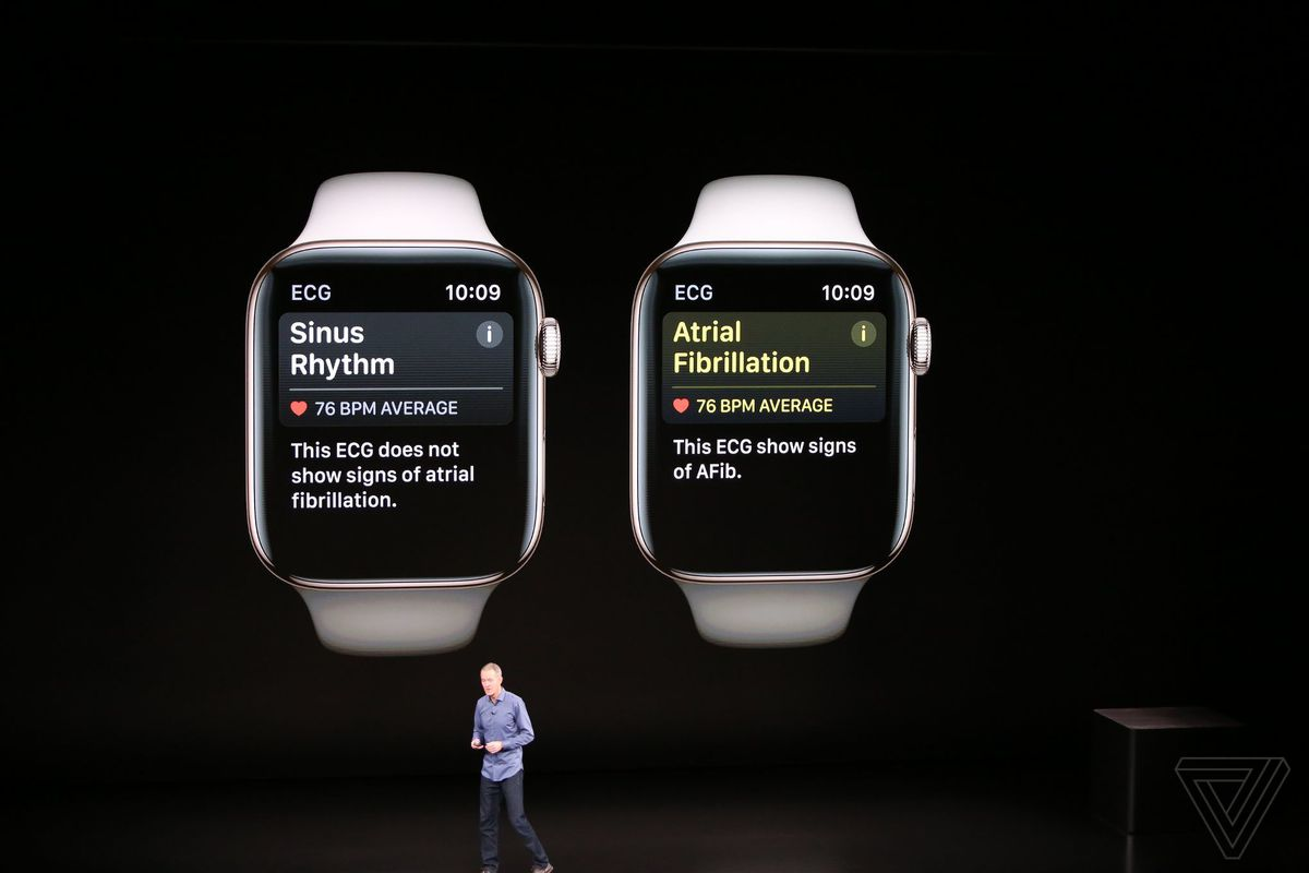 Apple Watch Series 4 includes a bigger display and a built-in EKG