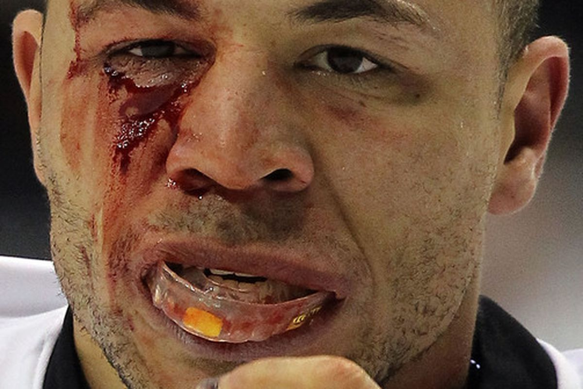 """This image of a bloodied Jarome Iginla has come to embody Jamie Benn's """"take no prisoner"""" attitude on the ice."""