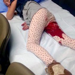Opal Henley, 8, was attacked by a pit bull while walking to East Elementary School with her 10-year-old cousin Monday, Sept. 28, 2015, in Roosevelt. Doctors had to remove muscle tissue from Opal's right leg due to the damage inflicted by the dog, according to Opal's mother, Shawna Henley.
