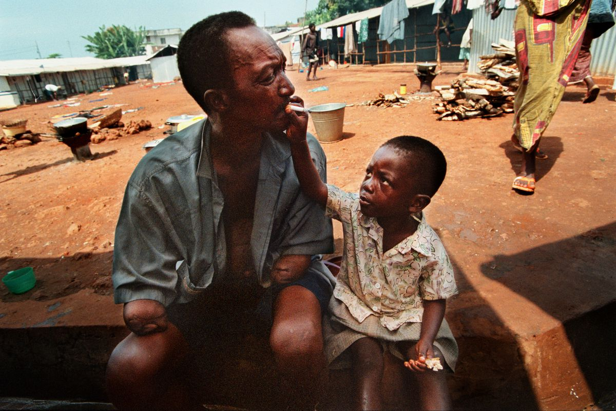 Lansana Sesay gets help with a cigarette from his grandson, Joseph at a special Amputee camp on Nov. 3, 1999 in Freetown, Sierra Leone. Rebels dragged him outside his house and amputated both arms during Sierra Leone's civil war.