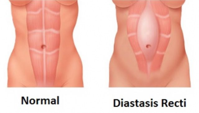 Diastasis recti, the post-pregnancy belly problem, explained