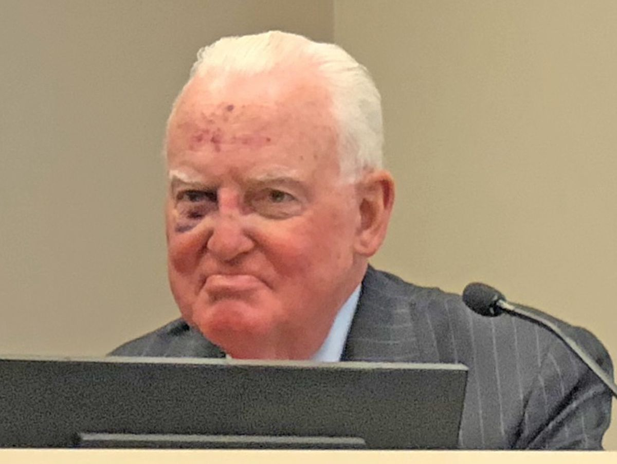 Ald. Edward Burke (14th) showed up at City Hall on Thursday with a shiner and scratches on his forehead. A source tells Sneed he tripped and fell after recent eye surgery. | Fran Spielman/Sun-Times