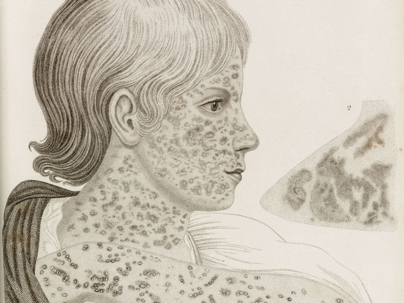 A 19th-century depiction of measles.