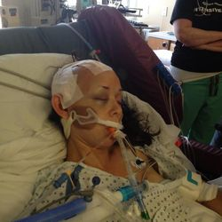 The day after Jaime Hilton's accident at Hell's Canyon, Idaho, she had to have part of her skull removed. It was kept in her abdomen until it was replaced.