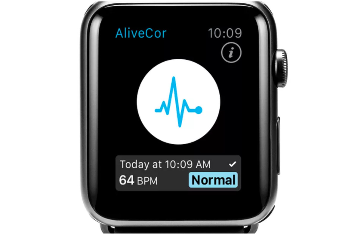 Apple Watch wristband sensor claims to detect potassium in