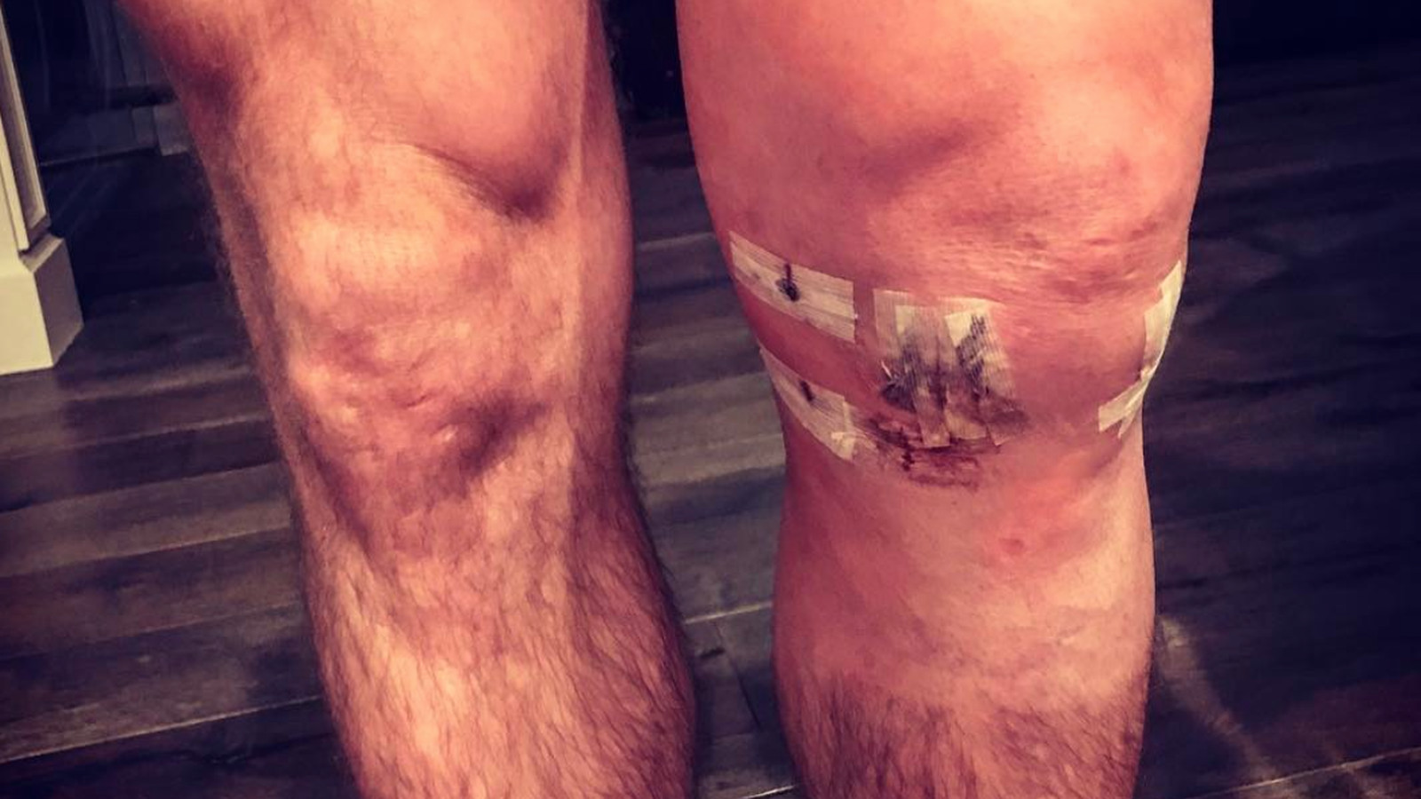 Pic Michael Bisping Posts Swollen Grotesque Leg