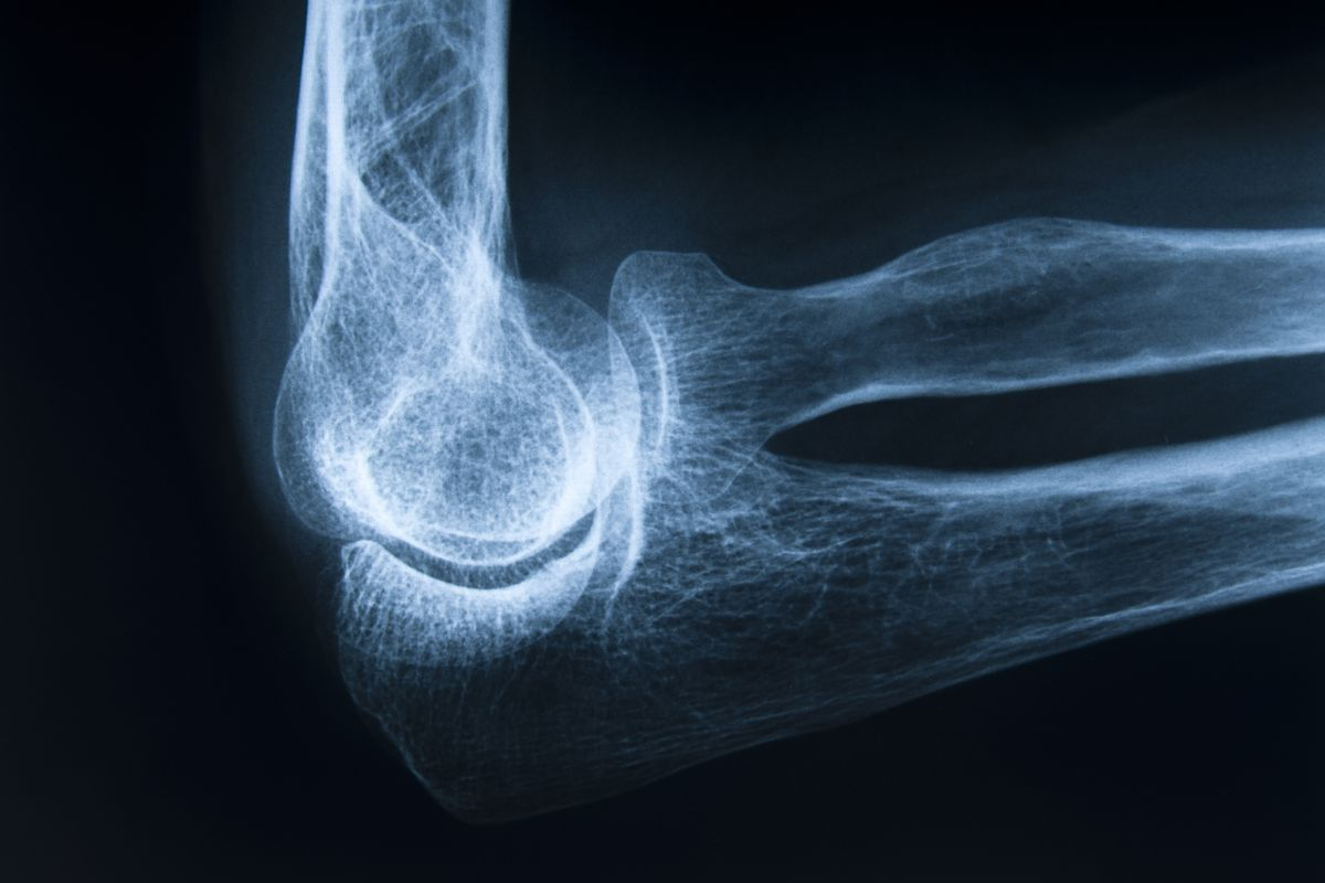 Osteoporosis treatment and screening: doctors are too blasé