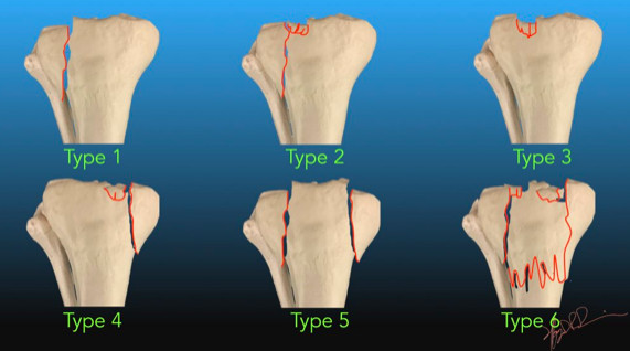 Running stress fracture tibial plateau Healing of