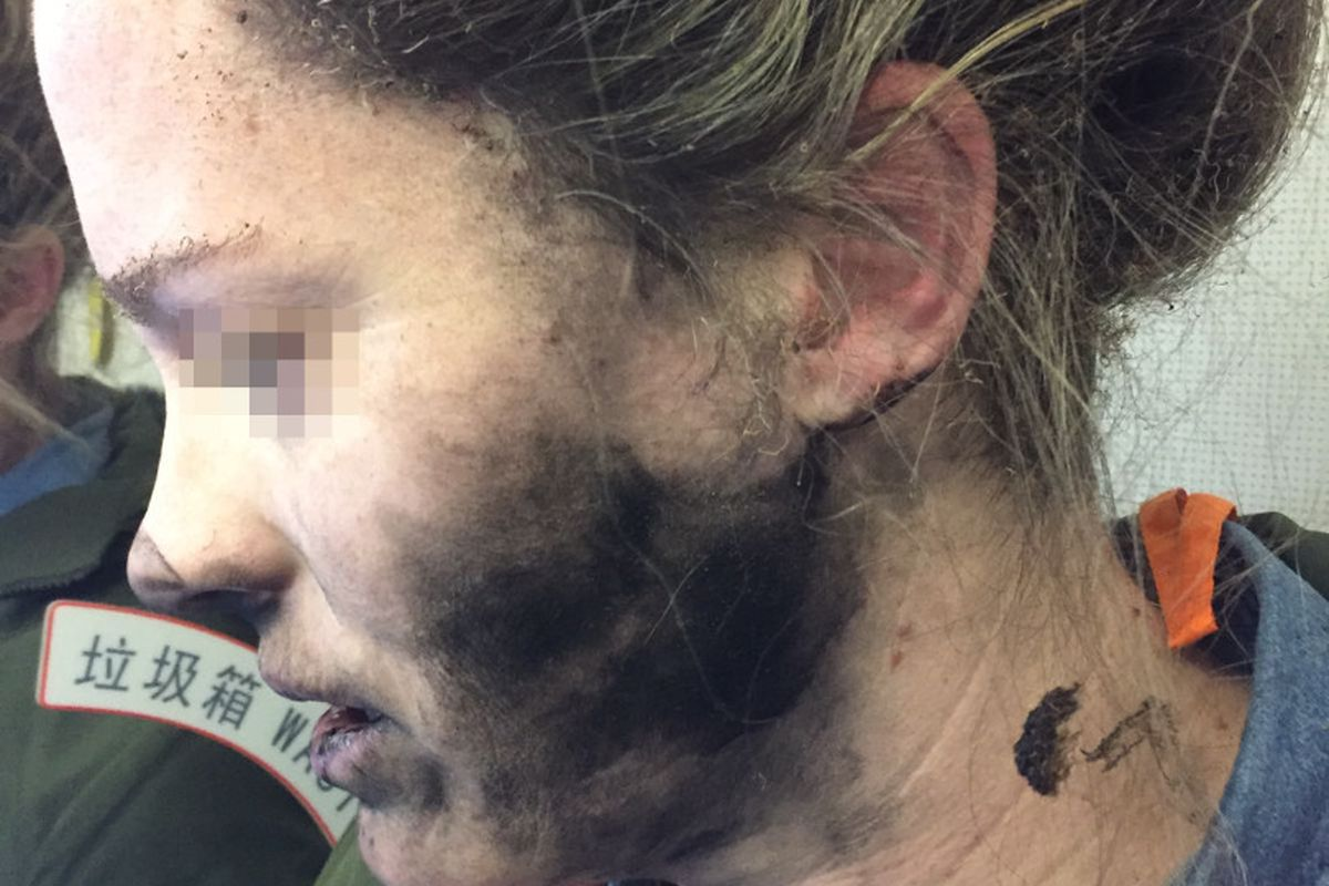 Woman was reportedly burned by Beats headphones e24a0fc42