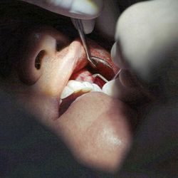 Dentist Dr. Ryan McNeil performs Pinhole Gum Rejuvenation on a patient at his office in Midvale Friday, May 30, 2014. The technique repairs receding gums instead of the older grafting technique. Healing is quicker, no cutting or grafting are required, and costs are lower.