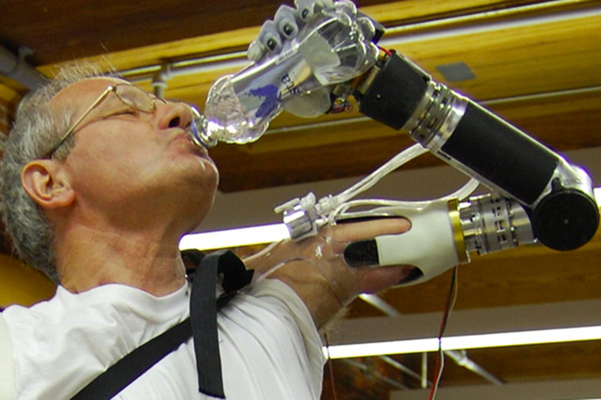 FDA Approves Robotic Prosthesis Controlled by Muscle Contractions